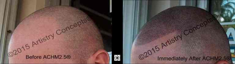 Caucasian Male Scalp Pigmentation Archive - Mark Weston Hair