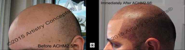 Scalp Micropigmentation Hispanic Archive - Mark Weston Hair