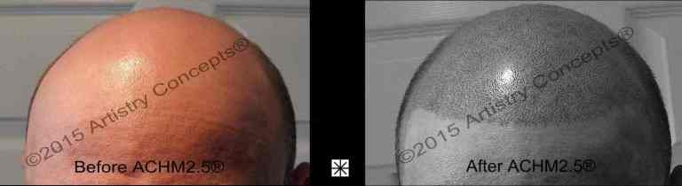 Scalp Micropigmentation Caucasian Archive