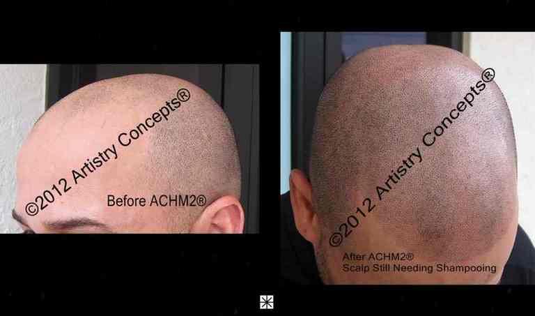 Scalp Micropigmentation Hispanic Archive